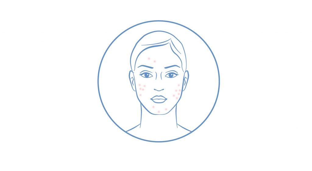 Korpás, szeborreás bőr kezelési terve