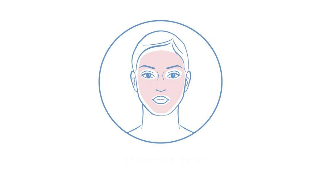 Rozáceás bőr kezelési terve