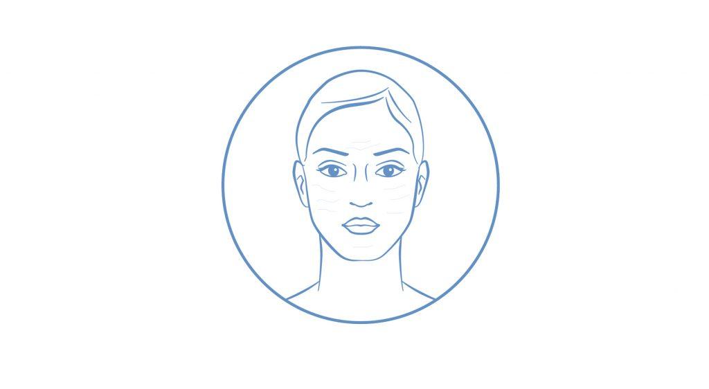 Felszíni és mélyrétegi vízhiányos bőr kezelési terve